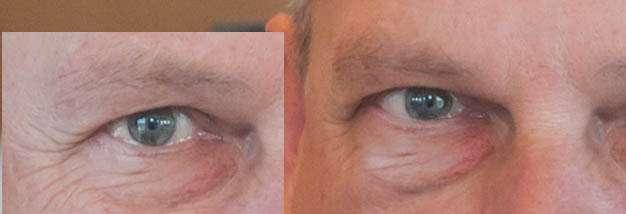 Het rechteroog gespiegeld en naar een nieuwe laag gekopieerd en daarna gestempeld over de blauwe plek.